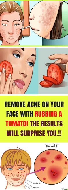 Expel skin break out with rubbing a tomato? Truth be told, the answer for your breakouts might develop in your vegetable garden. Utilizing tomato as a major aspect of your healthy skin routine can help clear Beauty Tips For Face, Beauty Hacks, Face Tips, Beauty Ideas, Beauty Care, Body Tips, Healthy Tips, Healthy Skin, Healthy Protein