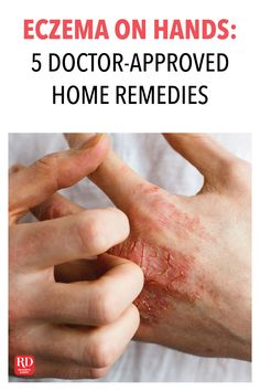 Eczema on Hands: 5 Doctor-Approved Home Remedies Home Remedies For Eczema, Natural Cold Remedies, Herbal Remedies, Eczema On Hands, Healthy Tips, Herbalism, Internet, Website, Detail