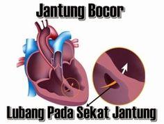 Info obat jantung bocor >> Obat Jantung Bocor Paling Mujarab Dengan menggunakan obat herbal teripang laut terjamin ampuh dan cepat sembuhkan jantung bocor anda.