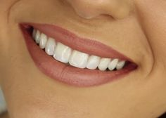 Here are a few ways that tell you how to smile better such as good oral hygiene, food habits, quit smoking, teeth whitening, drink plenty of water and dental treatments. These tips will help you to smile better. Visiting a dentist in Edmonton for a regula Smile Dental, Dental Care, Dental Group, How To Smile Better, Hydrogen Peroxide Uses, Wisdom Teeth Removal, Dental Bridge, Dental Problems, Health Problems