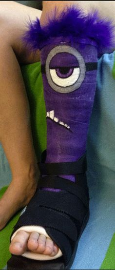 This fluffy evil minion looks kind of itchy… #inked #evil #minion #purple #cast #boot #decorate