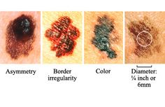 Awareness is key! (Signs of a skin melanoma)