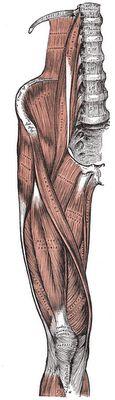 Ruptura muscular no quadricípite