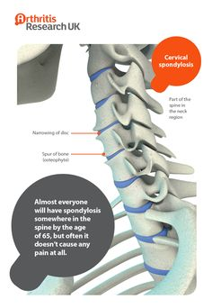 Cervical spondylosis Cervical Disc, Sleep Apnoea, Cervical Spondylosis, Yoga For Arthritis, Spinal Stenosis, Muscle Pain, Radiology, Autoimmune Disease, Medical Conditions