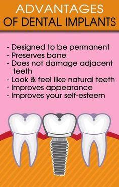 Dentaltown - Advantages of Dental Implants.