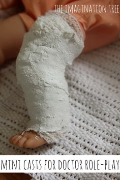 Real plaster casts for doctor role play