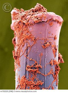 Scanning electron microscope images of teeth and toothbrushes focus on the dental plaque that causes decay Scanning Electron Microscope Images, Scanning Electron Micrograph, Microscopic Photography, Macro Photography, Free Photography, Microscopic Images, Macro And Micro, Weird Science, Medical Science