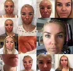 This amazing collage of pictures takes us through The Perfect Peel facial treatment journey, right through to the fabulous end results.