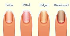 In this article you will find out what your fingernails are warning you about your health and how they are connected with certain diseases.