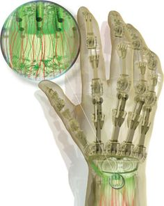 Advances have been made in allowing to connect the prosthetic arms and hands to the brain. Bioengineers are making a huge progress in technology.