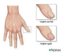 raffronto unghie normali unghie rigate