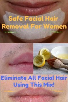 Facial Hair Removal For Women – Eliminate All Facial Hair Using This Mix! Safe Facial Hair Removal For Women – Eliminate All Facial Hair Using This Mix!Safe Facial Hair Removal For Women – Eliminate All Facial Hair Using This Mix! Natural Facial Hair Removal, Chin Hair Removal, Permanent Facial Hair Removal, Hair Removal Diy, Hair Removal Remedies, Removing Facial Hair Women, Women With Facial Hair, Hair Removal Scrub, Sugaring Hair Removal