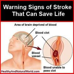 Discover the Warning Signs of Stroke that Can Save Life. A stroke is always a medical emergency and therefore it's important to recognize the symptoms of a stroke and to get help as soon as possible.