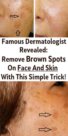 Numerous people find the age spots on their skin a huge problem, as they lower their self-esteem and look unattractive. Sun Spots On Skin, Black Spots On Face, Brown Spots On Hands, Age Spots On Face, Moles On Face, Sunspots On Face, Spots On Forehead, Skin Images, Face Skin