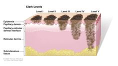 Clark levels of skin cancer; drawing shows skin with five thin lesions of different depths. In the first lesion (Clark Level I), the cancer is in the epidermis only. In the second lesion (Clark Level II), the cancer has begun to spread into the papillary dermis (upper layer of the dermis). In the third lesion (Clark Level III), the cancer has spread through the papillary dermis into the papillary-reticular dermal interface but not into the reticular dermis (lower layer of the dermis). In…