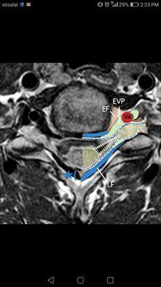Spinal Canal, Radiology Imaging, Knee Pain, Neuroscience, Ultrasound, Radios, Human Body, Markers, Anatomy