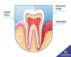 Do you know the difference between #healthy_gums and #Periodontal_pockets!! Check it out and get the better treatments for all the #dental_problems