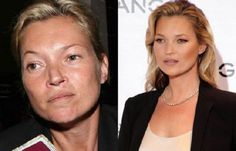 Supermodels Without Makeup: Kate Moss