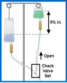 Intermittent infusion definition