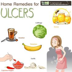 Stomach Ulcer Remedies: 10 Ways to Heal and Reduce Inflammation home remedies for ulcers Food For Stomach Ulcers, Foods For Ulcers, Stomach Ulcers Symptoms, Stomach Ulcer Remedies, Ulcer Symptoms, Acid In Stomach, Stomach Burning Remedies, Home Remedies For Gastritis, Ulcer Diet