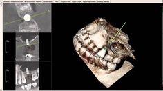 Upper Molar/Internal Sinus Lift 3-D Scan Dental Implant Planning - Narra...