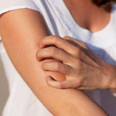 Food Allergy Symptoms   6 Ways to Reduce Them