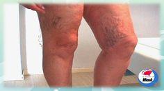 Remedios caseros y naturales para las varices y arañitas en las piernas ...
