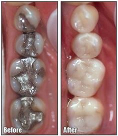 amalgam filling removal,resin composite fillings,esthetic, dental therapy,painless procedure