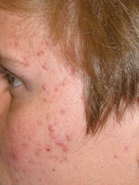 Clients with hormonal acne may also experience irregular menstrual cycles, hair loss, diabetes and infertility.