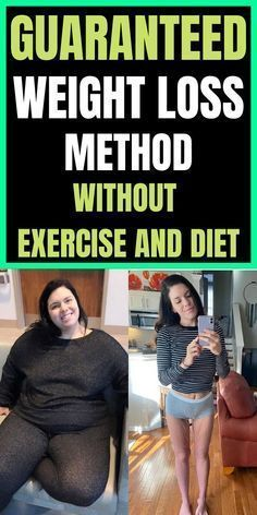 Do you want to lose weight fast and healthy without exercise & diet? Weight Loss For Women, Weight Loss Plans, Fast Weight Loss, Healthy Weight Loss, Weight Loss Journey, Need To Lose Weight, Losing Weight Tips, Weight Loss Tips, Before And After Weightloss