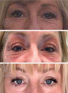 look how amazing these Fibroblast results are! This pretty girl didn't need much done but look at the difference it has made to her eyes Facial Cosmetic Surgery, Facial Anatomy, Reverse Aging, Plasma, Cosmetic Procedures, Dermal Fillers, Sagging Skin, Contour Makeup, Skin Tightening