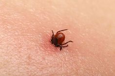 A tick bite may seem like a normal part of childhood, but it carries serious risks of disease. Tick bites can cause Lyme disease, paralysis, and more. Bloating Detox, Tick Removal, Tick Bite, Bites And Stings, Stem Cell Therapy, Insect Bites, Lyme Disease, Wuhan, Evening Meals