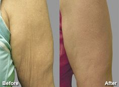 Exilis Elite Before and After Photos Milwaukee