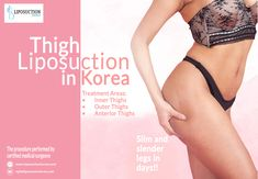Find the best Korean Thigh Liposuction in Seoul, South Korea for inner portion of legs at Liposuction Korea. We provide the Korean Thigh Liposuction surgery procedure, cost and recovery details before surgery. Thigh Liposuction, Liposuction Procedure, Slim Thighs, Outer Thighs, Inner Thigh, Surgery, Korea, Lose Weight, Fat