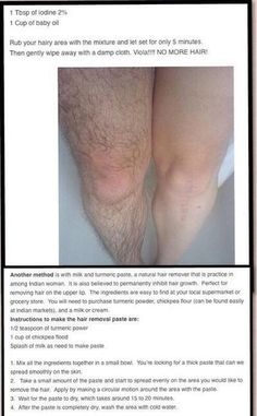 Hair removal!!!
