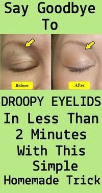 Droopy Eyelids Drooping eyelids are generally the result of ageing. However, many different factors can have an effect on their look. Once they arise, droopy eyelids may additionally stay the ident… Beauty Care, Beauty Skin, Health And Beauty, Beauty 360, Star Beauty, Diy Beauty, Drooping Eyelids, Droopy Eyes, Makeup For Droopy Eyelids