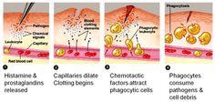 Immunology - Inflammatory response