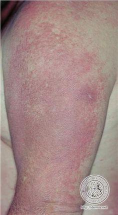 84 Best Dermato Myositis Images Autoimmune Disease