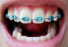 From Self-Ligating Orthodontic Braces to Hawley Retainers | Funky ...