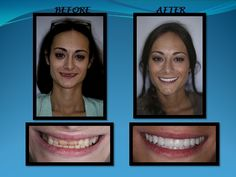 Life changing smiles here at Kaver Dental .