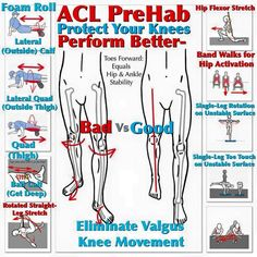 [ACL PreHab] Running Sports CrossFit and much more will put a lot of demand on your knees and ACL if you are not optimally aligned.  A Valgus Knee Movement or an inward movement of the knees when squatting lunging jumping or running will place a lot of stress inappropriately on your ACL.   Valgus Knee Movement can be caused by a lot of different conditions:  Tight Calf Muscles - especially the lateral or outside segments of the Gastrocnemius and Soleus.  Weak Hips - namely a weak Glute…