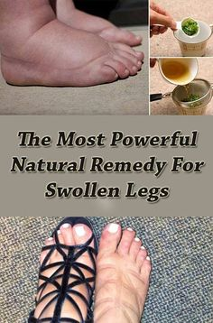 The Most Powerful Natural Remedy For Swollen Legs