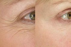 Learn how to make a homemade natural Botox for wrinkles.