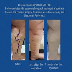 Successful treatment of varicose disease by dr. Fares Boufakhreddine MD. PhD.