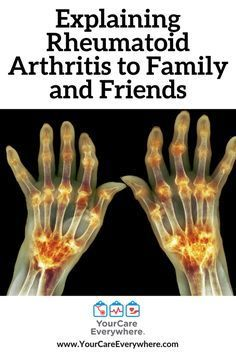 Remedies Arthritis Most people have good intentions and want to help when you're not feeling well. It's when you look perfectly fine, that they don't understand and sometimes don't believe you are in pain. Arthritis Exercises, Rheumatoid Arthritis Symptoms, Types Of Arthritis, Arthritis Remedies, Arthritis Treatment, Health Remedies, Arthritis Diet, Stem Cell Therapy, Feeling Well