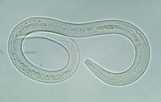 The hookworm filariform larvae.