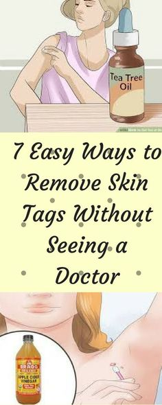 7 Easy Ways to Remove Skin Tags Without Seeing a Doctor Skin tags, or exactly known as acrochordon, are a result of the accumulation of blood vessels and collagen in the thicker pieces of the skin. They are small fleshy outgrowths, deformed in shape, which appear on the armpits, arms, neck, eyelids, and lower part of the breast, both in ladies and guys.
