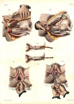 Jean Baptiste Marc Bourgery (https://pinterest.com/pin/287386019948321810) & Nicolas Henri Jacob - Atlas of Human Anatomy and Surgery. Tome 7. Pl. 73. [Traité complet de l'anatomie de l'homme comprenant la médecine opératoire (1831-1854 https://pinterest.com/pin/287386019941966857/ )].