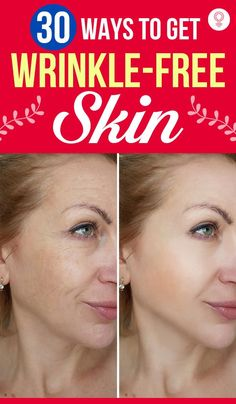 Diy Beauty, Beauty Hacks, Home Remedies For Wrinkles, Mask Cream, Brown Spots On Skin, Natural Skin Care, Skin Care Tips, Health Care, Skincare