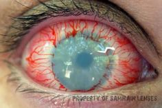 Waking Dead: Please visit my site www.halloween-eye.com for the best in custom hand painted contact lenses. I offer the best value in custom contacts with diverse categories;